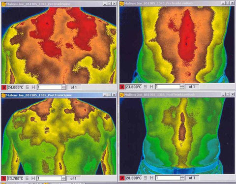 Infrared photos depicting ares of inflammation before and after the placement of IceWave patches.